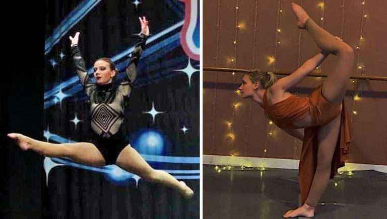 Dancing on stage - Flexibility after ASC Scoliosis Surgery