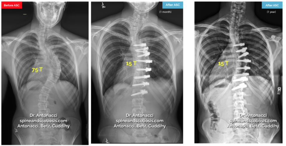 Before and After ASC Scoliosis Surgery 2